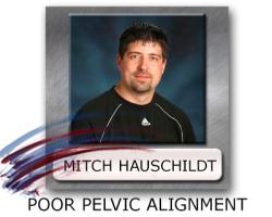 Pelvic Alignment - Ideal Pelvic Position - Pelvic Control
