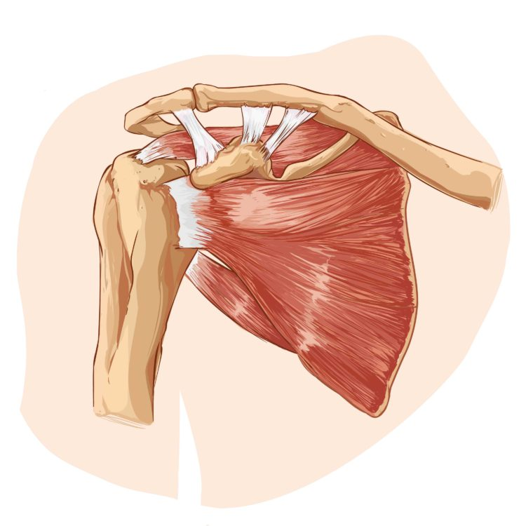 The Shoulder Joint Impingement