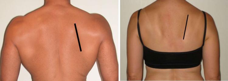 Osar-stabilizing-shoulder-scapula-upward-rotation-posterior-tilt2-forward-shoulder-posture