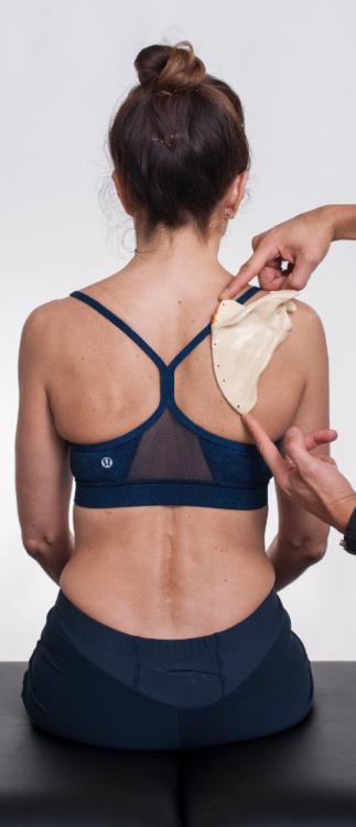 Osar-stabilizing-shoulder-neutral-scapular-alignment-forward-shoulder-posture
